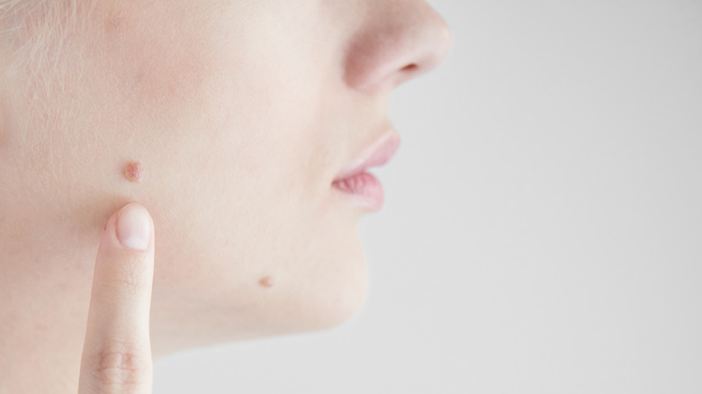 The truth about beauty marks - Best World News