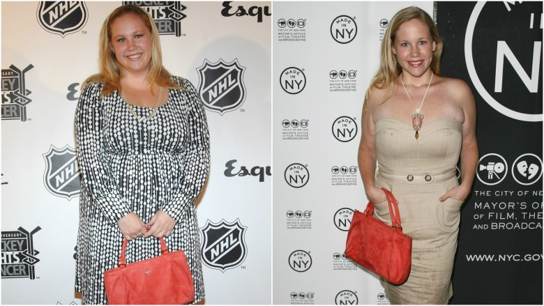 Celebs Who Ve Had Weight Loss Surgery