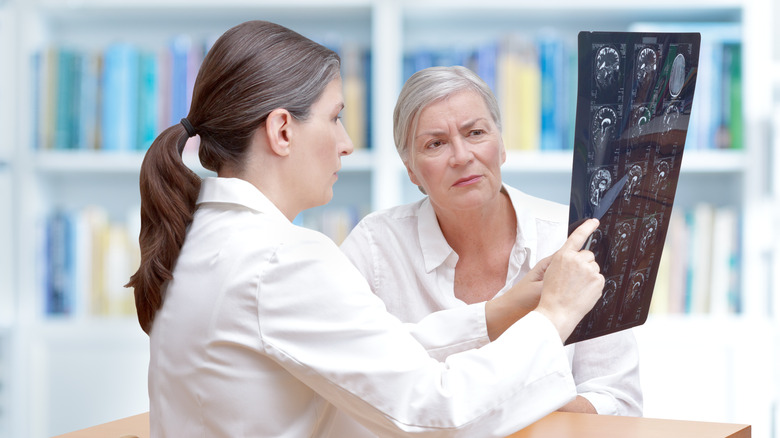 Doctor showing a patient brain scans