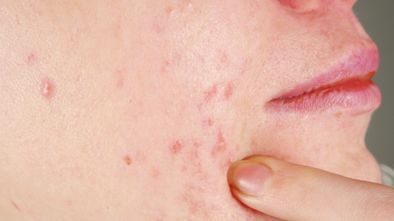 What You Don U0026 39 T Know About Pimples